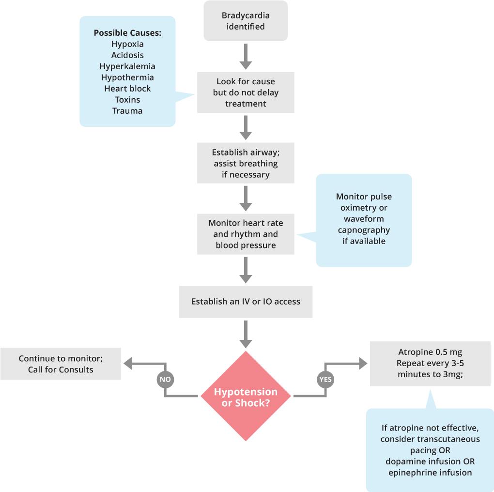 Bradycardia: Symptoms and Treatment 55