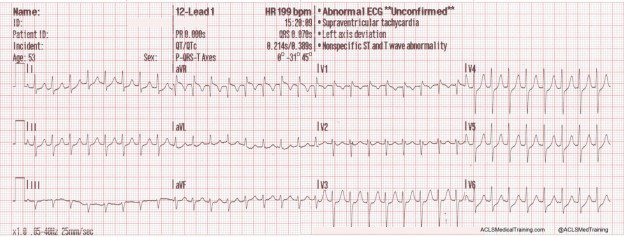 photograph relating to Printable Ekg Strips named Rhythm Level of popularity - ACLS Healthcare Exercising