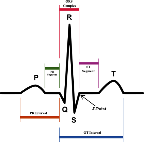 Ecgs in acute myocardial infarction acls medical training in the acute phase of non st segment elevation myocardial infarction the st segment may actually be depressed in leads that face the compromised portion of ccuart Gallery