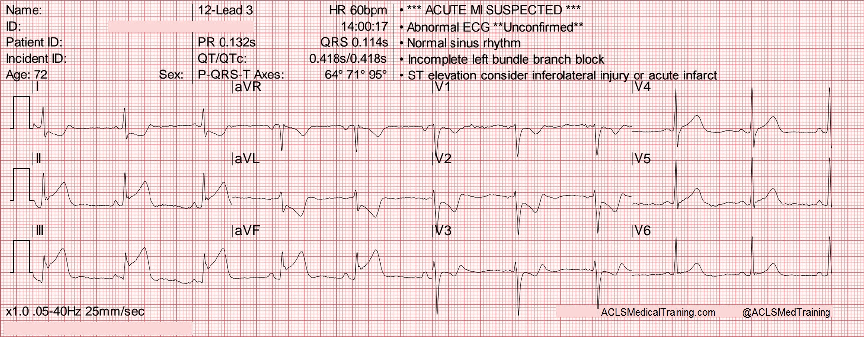 ACS and STEMI