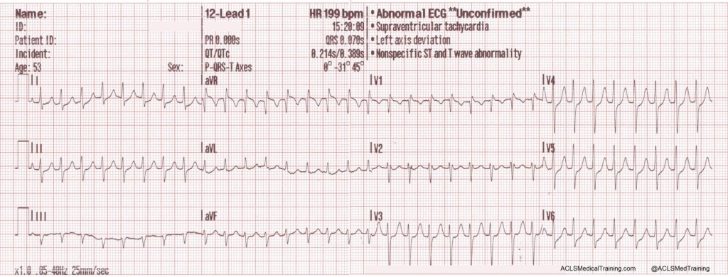 A 12-lead ECG is obtained by paramedics