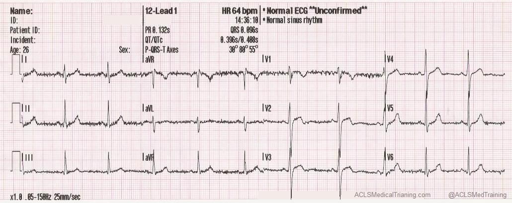 Float Nurse: Practice EKG Strips 392 |Ekg Examples