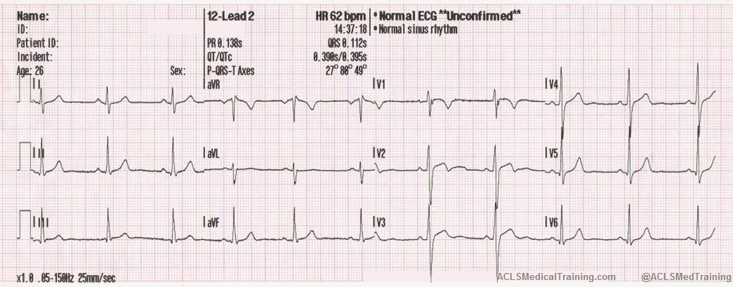 Guide to Understanding ECG Artifact - ACLS Medical Training