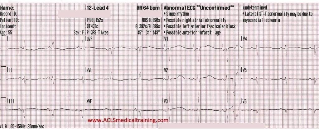 12-Lead 4 ECG