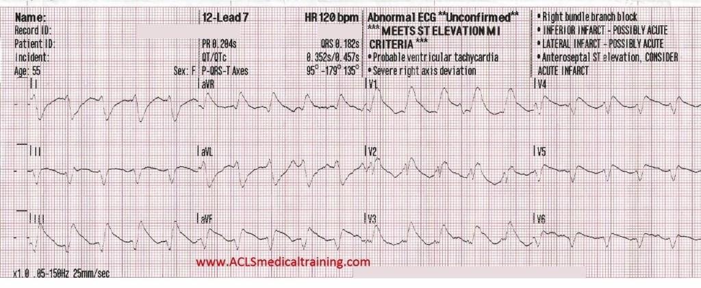 12-Lead 7 ECG