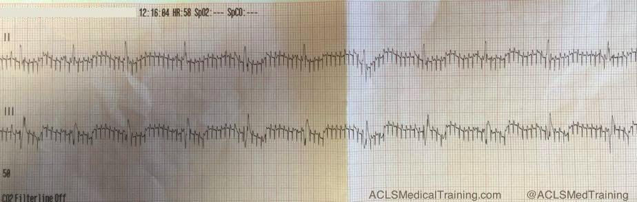 EKG artifact