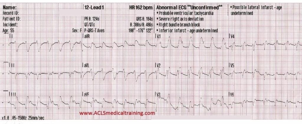 Initial 12-Lead ECG
