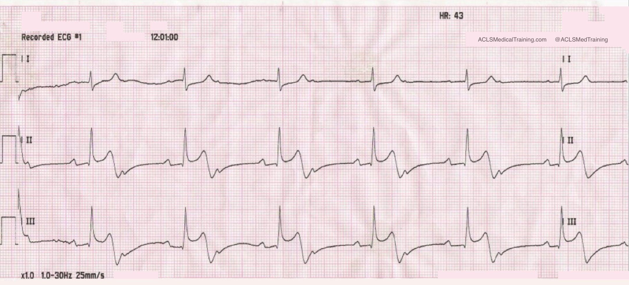 The initial ECG showed second degree AV block with 2:1 conduction.