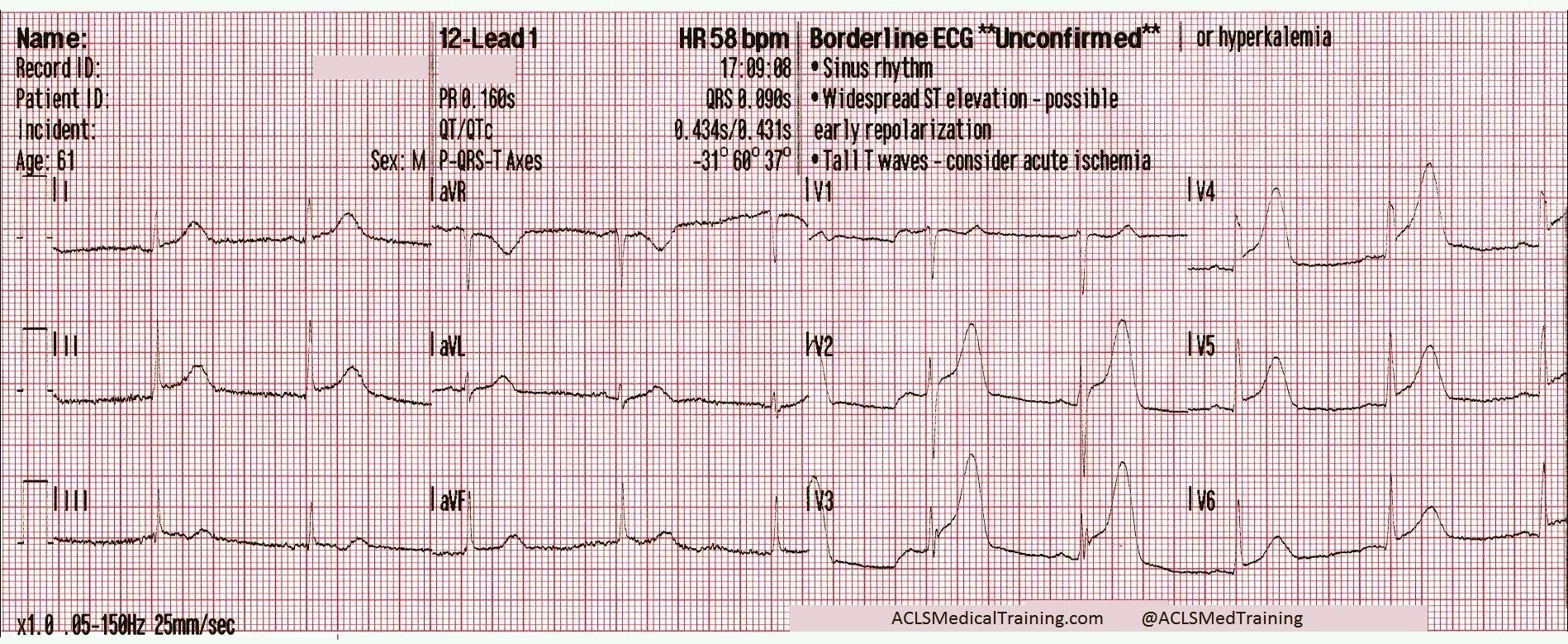 chest pain and transient stsegment elevation acls