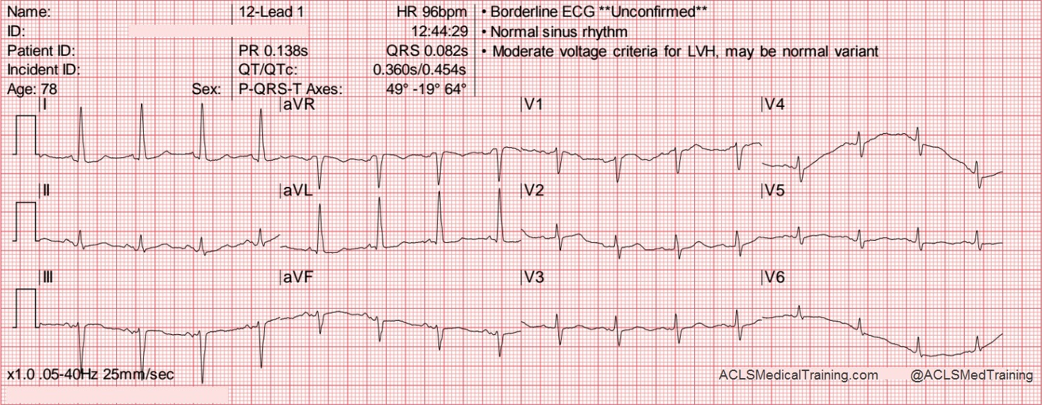 Guide To Understanding Ecg Artifact Acls Medical Training