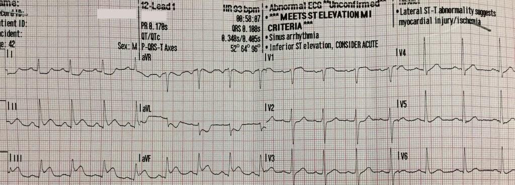 RV infarction 1