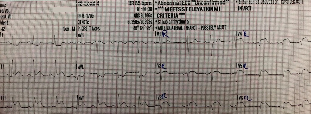Acute Inferior Stemi With Right Ventricular Infarction And