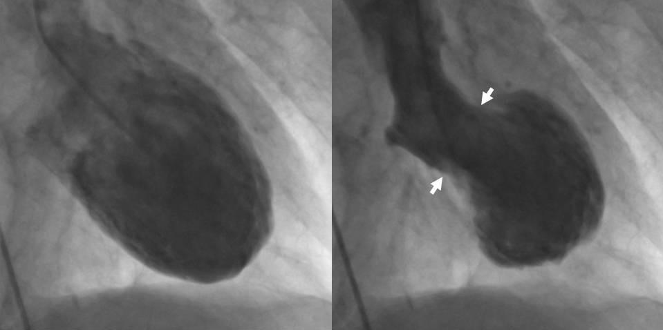 tako-tsubo-ventriculograms