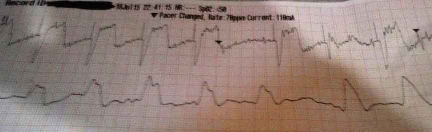 Transcutaneous Pacing (TCP) With and Without Capture - ACLS