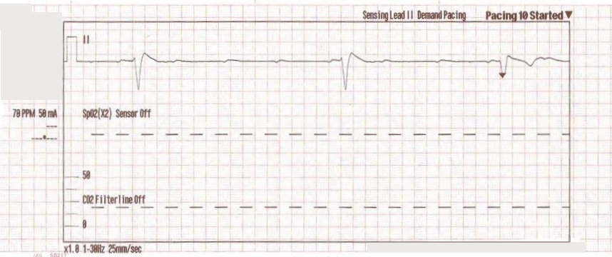 transcutaneous pacing tcp with and without capture acls medical
