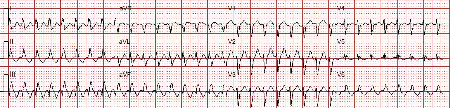 V Tachycardia Ecg