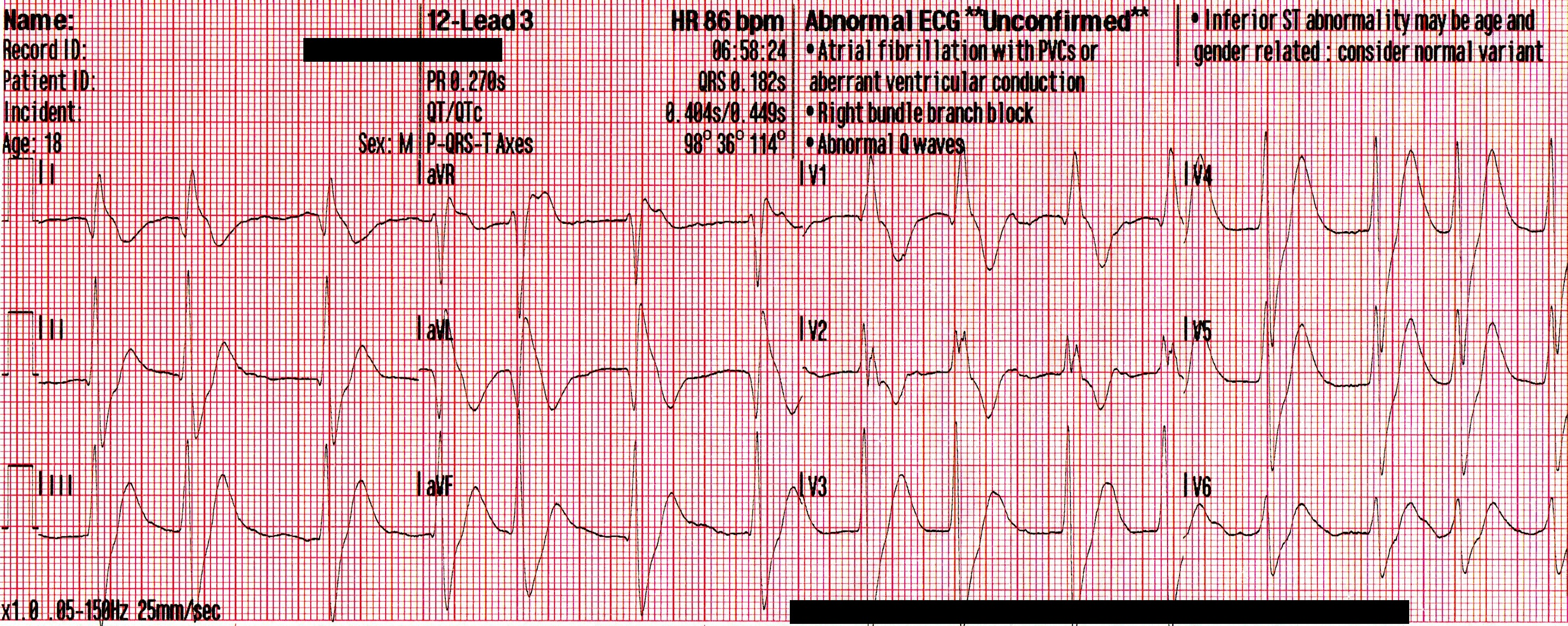 Mixed Overdose and Na-Channel Blockade - ACLS Medical Training