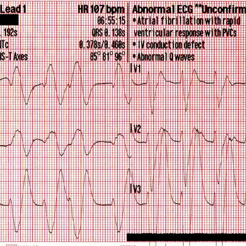 Svt With Aberrancy Or Ventricular Tachycardia Acls Medical Training