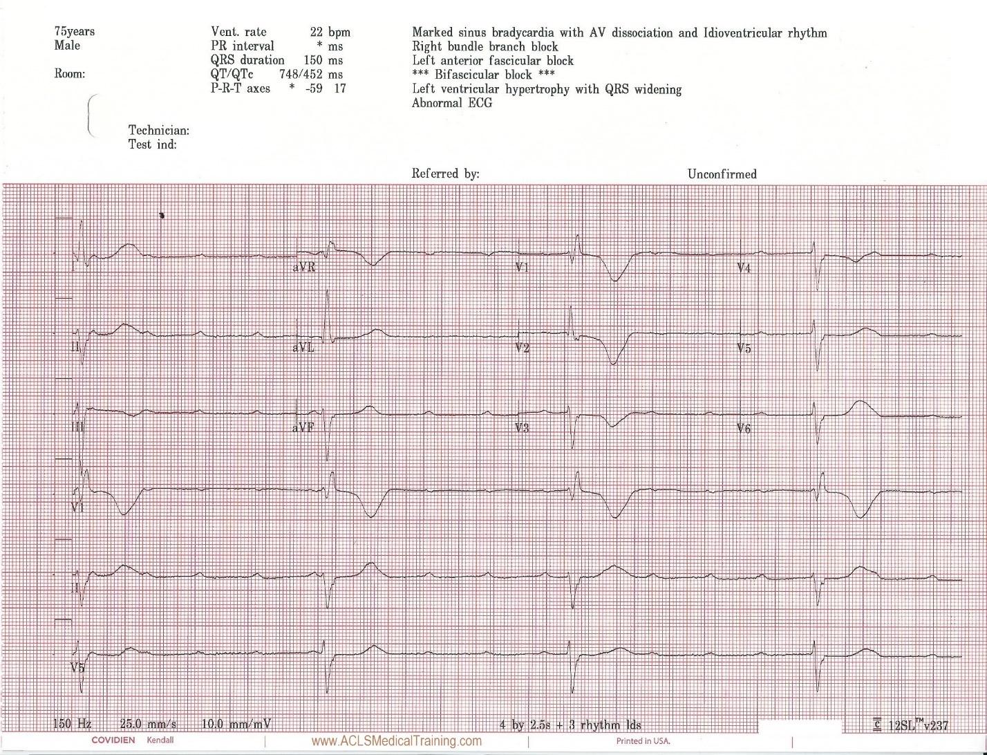 Unstable Bradycardia Resolves Following Atropine and