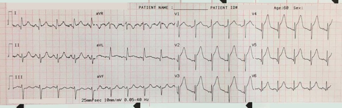 Broken heart syndrome ecg